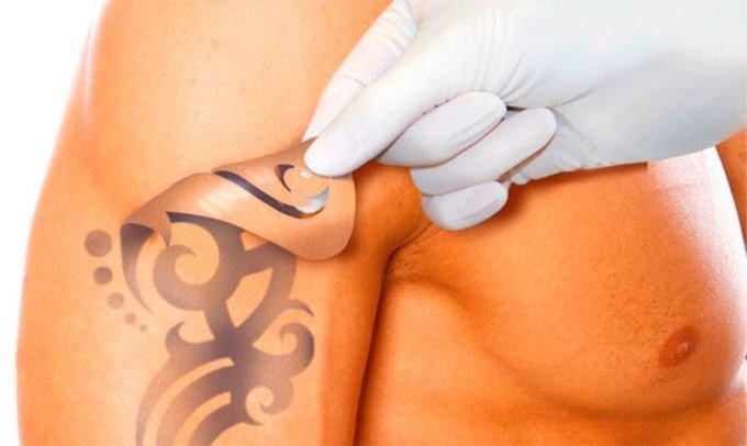 Свести татуировку